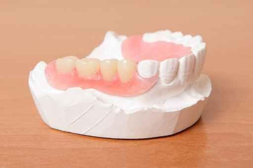 prótese dentária 1