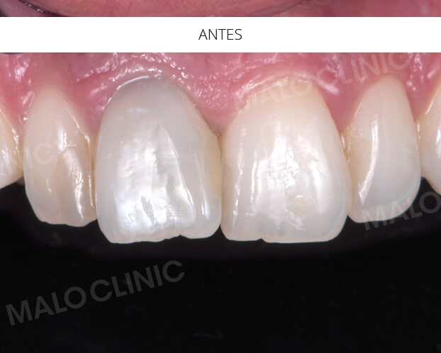 Antes do Implante dentário - MALO CLINIC