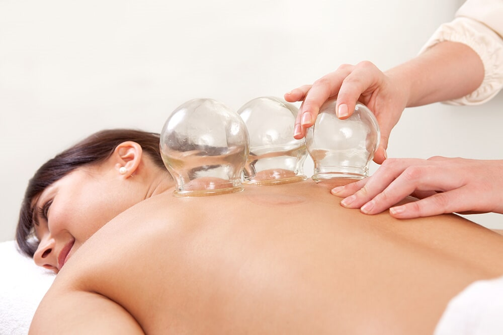 Coppe Cupping-Therapy1