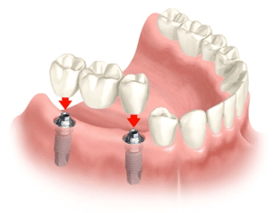 implant supported 2