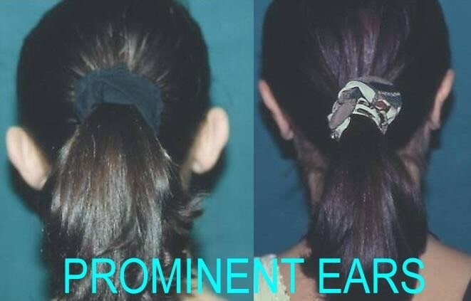 Prominent Ears