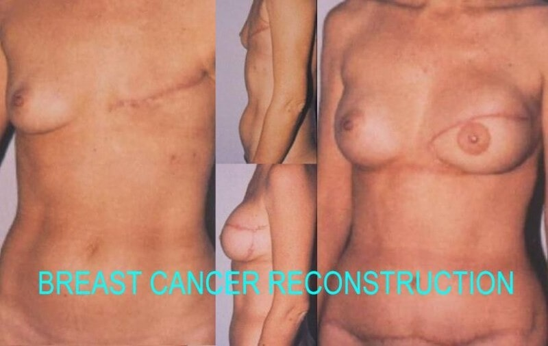Breast Cancer Reconstruction