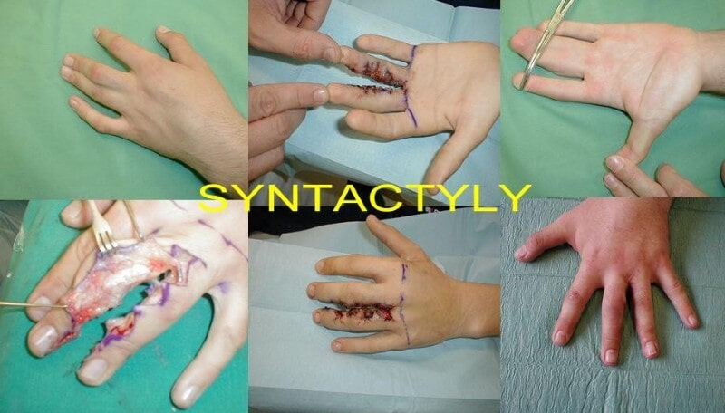 Syntactyly
