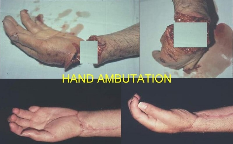 Hand Ambutation