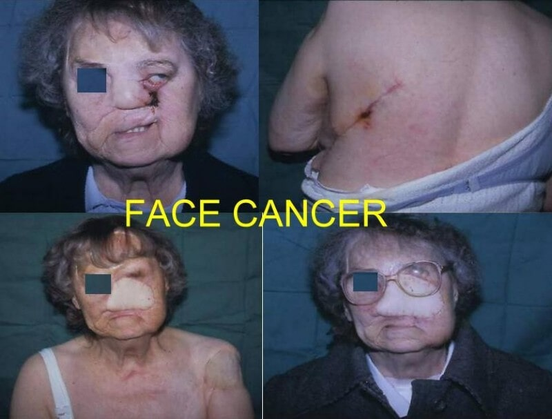 Face Cancer