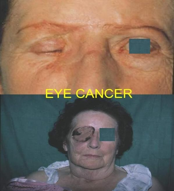 Eye Cancer
