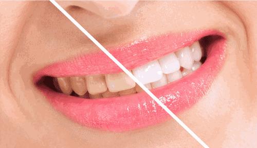 Braqueamento Dentário